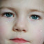 Pinkeye (Conjunctivitis) in Children & Babies: The Essential Guide